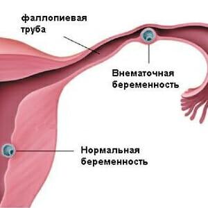 Рисунок внематочной беременности
