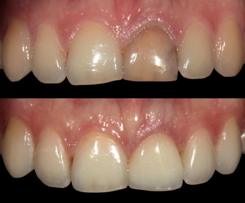 Причины появления и методы избавления от серого налета на зубах