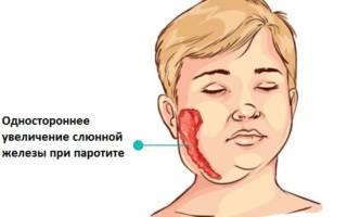 воспаление околоушной слюнной железы изнутри