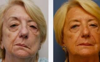 До и после лечения неврита