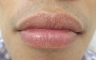 Закупоренные поры на губах
