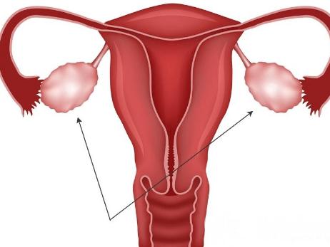 Изображение яичников