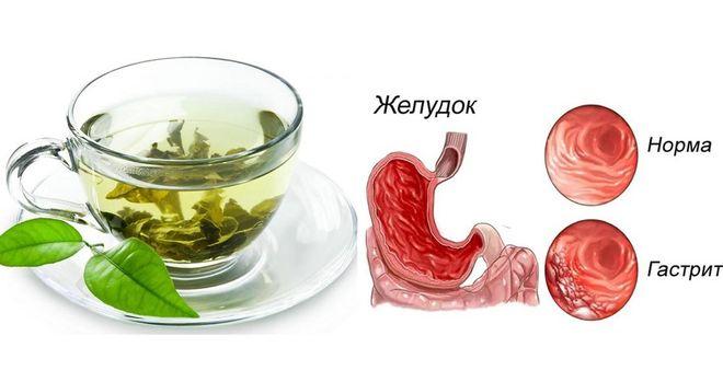 можно ли зеленый чай при гастрите