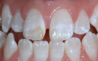 Недостаток кальция для зубов