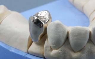 Зубная коронка металлическая